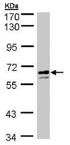 Western blot - Anti-Glucose 6 Phosphate Dehydrogenase antibody (ab226964)