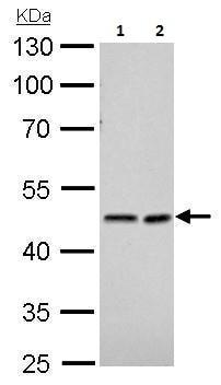 Western blot - Anti-NDRG1 antibody (ab226982)