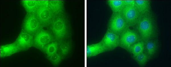 Immunocytochemistry/ Immunofluorescence - Anti-SLK antibody (ab226986)