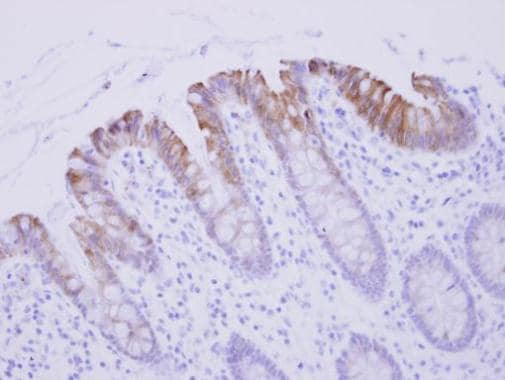Immunohistochemistry (Formalin/PFA-fixed paraffin-embedded sections) - Anti-Biglycan antibody (ab226991)