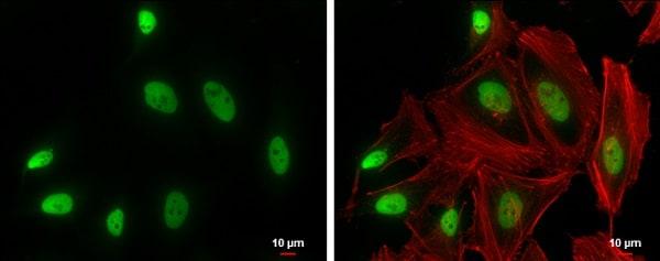 Immunocytochemistry/ Immunofluorescence - Anti-SMARCA2 / BRM antibody (ab227000)