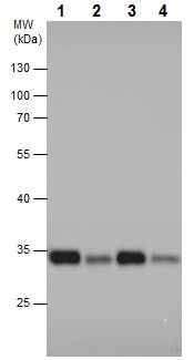Western blot - Anti-RPS6 (phospho S235) antibody - C-terminal (ab227005)