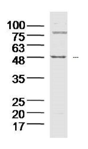 Western blot - Anti-p40 antibody (ab227012)