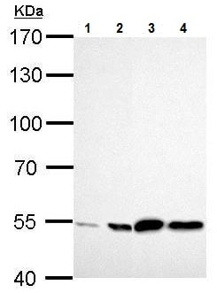 Western blot - Anti-ALDH2 antibody (ab227021)