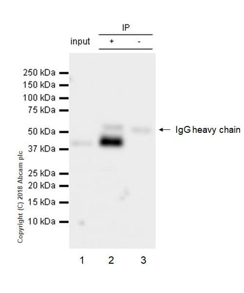 Immunoprecipitation - Anti-CCR6 antibody [EPR22259] (ab227036)