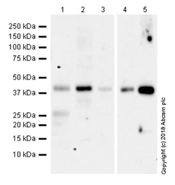 Western blot - Anti-CCR6 antibody [EPR22259] (ab227036)