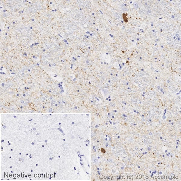 Immunohistochemistry (Formalin/PFA-fixed paraffin-embedded sections) - Anti-Alpha-synuclein filament antibody [MJFR-14-6-4-2] - Conformation-Specific (Biotin) (ab227047)
