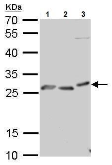 Western blot - Anti-Prion protein PrP antibody (ab227064)