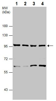 Western blot - Anti-p95/NBS1 antibody (ab227068)