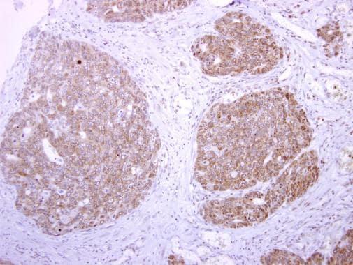 Immunohistochemistry (Formalin/PFA-fixed paraffin-embedded sections) - Anti-TPA Tissue Plasminogen Activator antibody (ab227069)