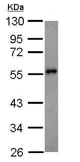 Western blot - Anti-Presenilin 1/PS-1 antibody (ab227070)