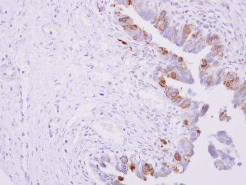 Immunohistochemistry (Formalin/PFA-fixed paraffin-embedded sections) - Anti-Cytochrome P450 Reductase antibody (ab227071)