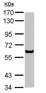 Western blot - Anti-PPAR alpha antibody - ChIP Grade (ab227074)