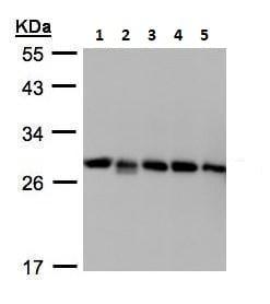 Western blot - Anti-D4 GDI antibody (ab227093)