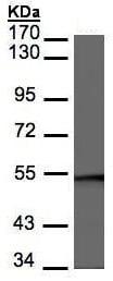 Western blot - Anti-BAF57/SMARCE1 antibody - C-terminal (ab227094)