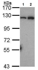 Western blot - Anti-NFkB p100/NFKB2 antibody - C-terminal (ab227096)