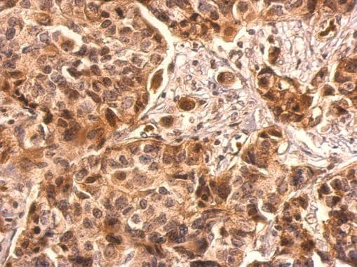 Immunohistochemistry (Formalin/PFA-fixed paraffin-embedded sections) - Anti-AKT1 antibody (ab227100)