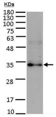 Western blot - Anti-FGF10 antibody (ab227102)