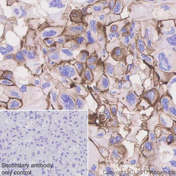 Immunohistochemistry (Formalin/PFA-fixed paraffin-embedded sections) - Anti-CD73 antibody [EPR6114] - Low endotoxin, Azide free (ab227113)