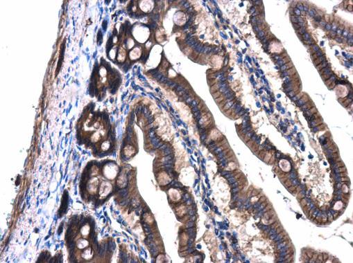 Immunohistochemistry (Formalin/PFA-fixed paraffin-embedded sections) - Anti-GNAQ antibody (ab227123)