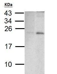 Western blot - Anti-PUMA antibody - C-terminal (ab227130)