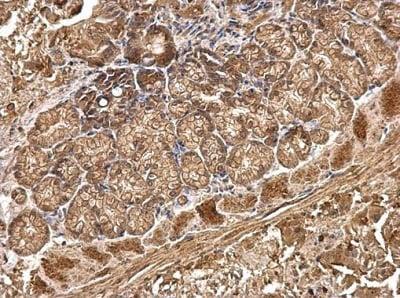 Immunohistochemistry (Formalin/PFA-fixed paraffin-embedded sections) - Anti-R Cadherin antibody (ab227153)