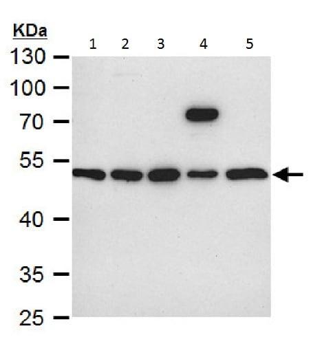 Western blot - Anti-Integrin linked ILK antibody (ab227154)