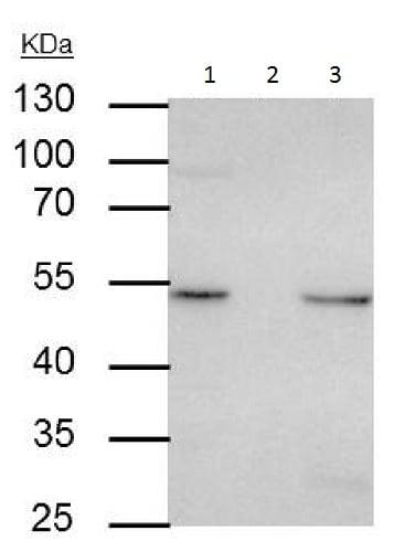 Immunoprecipitation - Anti-Integrin linked ILK antibody (ab227154)