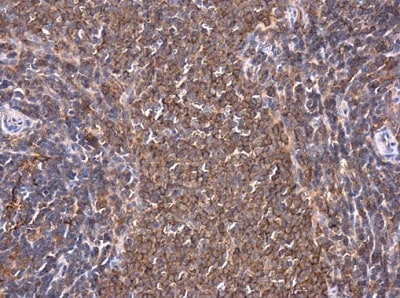 Immunohistochemistry (Formalin/PFA-fixed paraffin-embedded sections) - Anti-PKC theta/PRKCQ antibody - C-terminal (ab227155)