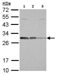 Western blot - Anti-Bcl10 antibody (ab227156)