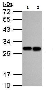Western blot - Anti-PGP9.5 antibody (ab227157)