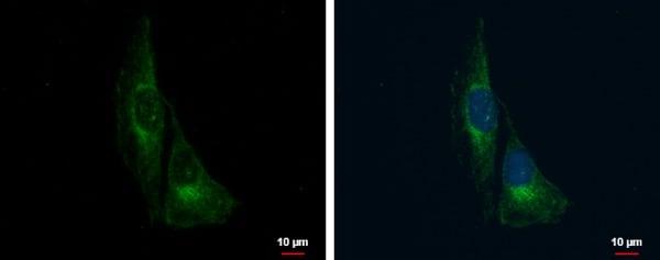 Immunocytochemistry/ Immunofluorescence - Anti-TrkC antibody (ab227164)