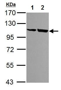 Western blot - Anti-alpha Actinin 4 antibody (ab227166)