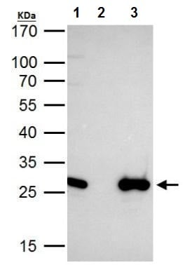 Immunoprecipitation - Anti-EN2 antibody (ab227167)