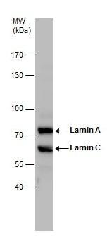 Western blot - Anti-Lamin A + Lamin C antibody (ab227176)