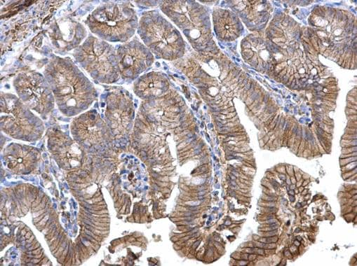 Immunohistochemistry (Formalin/PFA-fixed paraffin-embedded sections) - Anti-CTNNA1 antibody (ab227181)