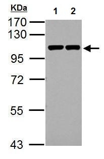 Western blot - Anti-CTNNA1 antibody (ab227181)