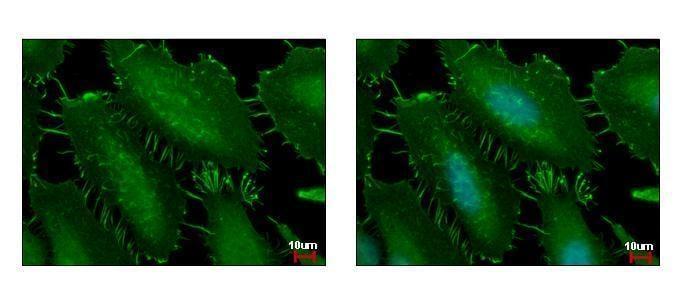 Immunocytochemistry/ Immunofluorescence - Anti-CTNNA1 antibody (ab227181)