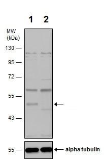 Western blot - Anti-Integrin linked ILK antibody (ab227185)