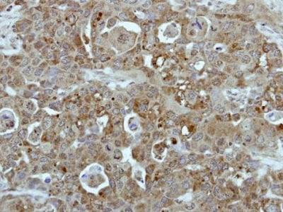 Immunohistochemistry (Formalin/PFA-fixed paraffin-embedded sections) - Anti-Bcr antibody - C-terminal (ab227186)
