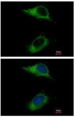 Immunocytochemistry/ Immunofluorescence - Anti-CARD6 antibody (ab227189)