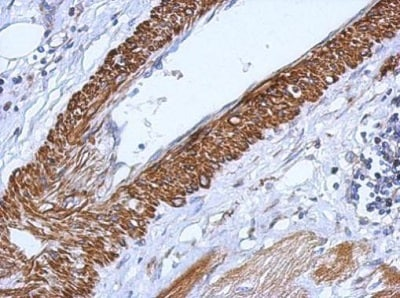 Immunohistochemistry (Formalin/PFA-fixed paraffin-embedded sections) - Anti-CARD6 antibody (ab227189)