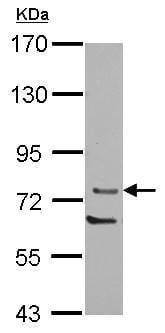 Western blot - Anti-PKC theta/PRKCQ antibody (ab227203)
