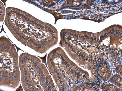 Immunohistochemistry (Formalin/PFA-fixed paraffin-embedded sections) - Anti-PI 3 Kinase p85 alpha antibody (ab227204)