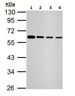Western blot - Anti-SQSTM1 / p62 antibody (ab227207)
