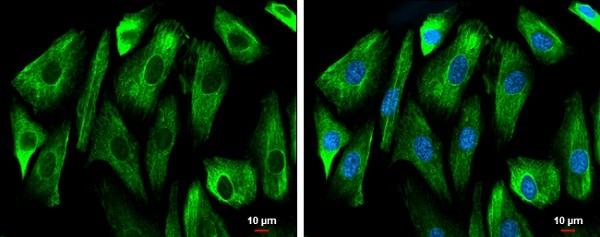 Immunocytochemistry/ Immunofluorescence - Anti-GSK3 beta antibody (ab227208)