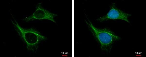 Immunocytochemistry/ Immunofluorescence - Anti-CKAP2/LB1 antibody (ab227214)