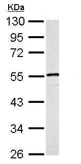 Western blot - Anti-Desmin antibody (ab227224)