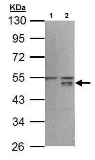 Western blot - Anti-Wnt5a antibody (ab227229)