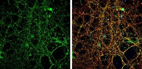 Immunocytochemistry/ Immunofluorescence - Anti-NMDAR2A antibody - N-terminal (ab227233)